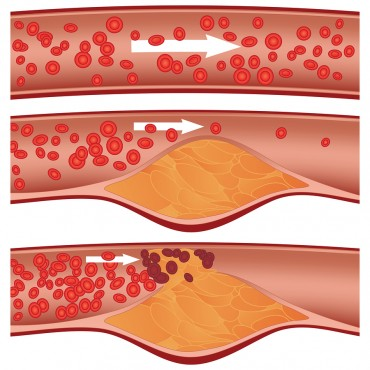 Illustration of an Artery blocked with bad cholesterol